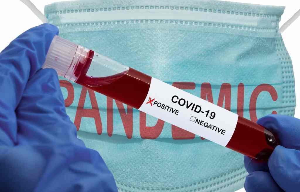 Subiu Para Uma Centena os Óbitos Por Causa do Vírus SARS-COV-2